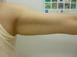 施術前二の腕左.JPG